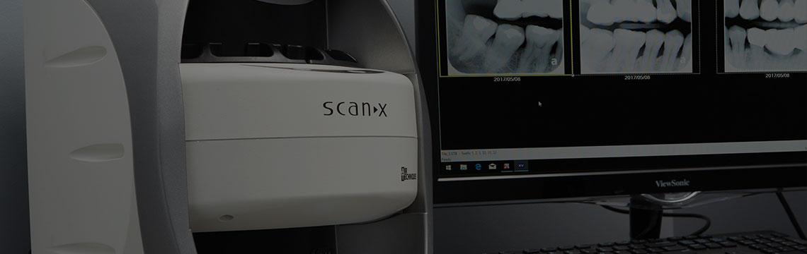 X-ray Processors Dental X-ray Processors