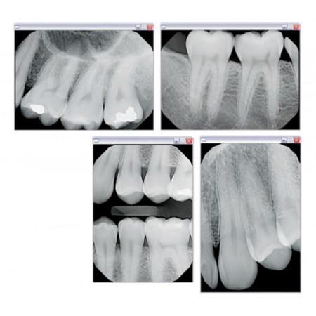 Gendex GXS-700™ Dental X-Ray Sensor Size 2   KaVo Kerr - Distributed by Henry Schein