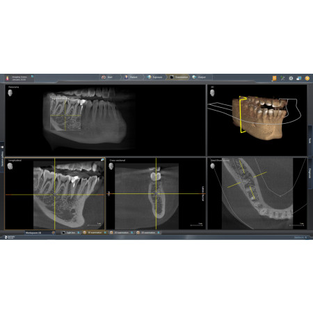Dentsply Sirona Axeos – Complete Solution - Distributed by Henry Schein