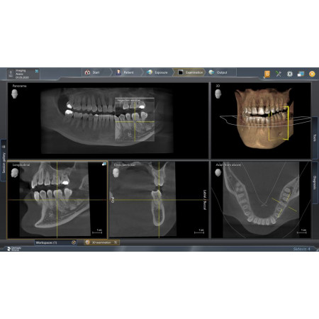 Dentsply Sirona Axeos – Implant Solution - Distributed by Henry Schein