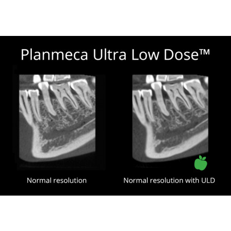 Planmeca Ultra-Low Dose™ Imaging - Distributed by Henry Schein