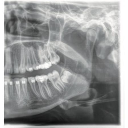 Dentsply Sirona Orthophos XG 5  - Distributed by Henry Schein