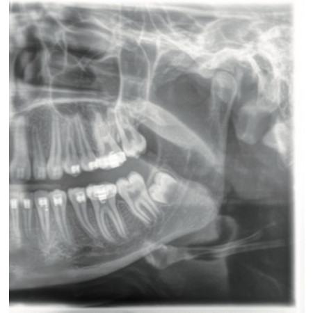 Dentsply Sirona Orthophos XG 3D Ready - Ceph Left - Distributed by Henry Schein