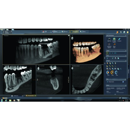 Dentsply Sirona Orthophos XG 3D - Distributed by Henry Schein