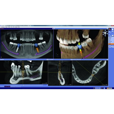 Dentsply Sirona Orthophos SL 3D-Ai - Distributed by Henry Schein