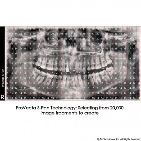 Air Techniques ProVecta S-Pan Panoramic X-Ray - Distributed by Henry Schein