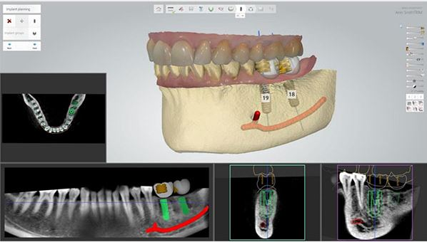Implant Studio™ and Orthodontic software get upgrades