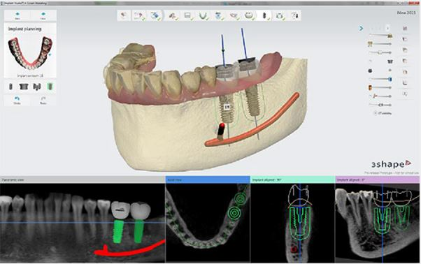 Implant Studio™ 2015 software released featuring workflows for edentulous patients